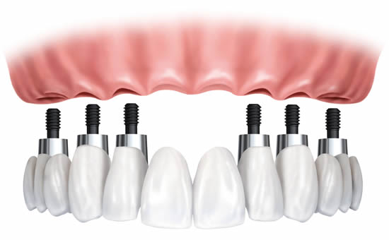 Dental implants to support a full arch of teeth