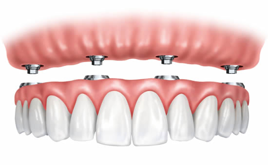 Dental implants used to support a denture